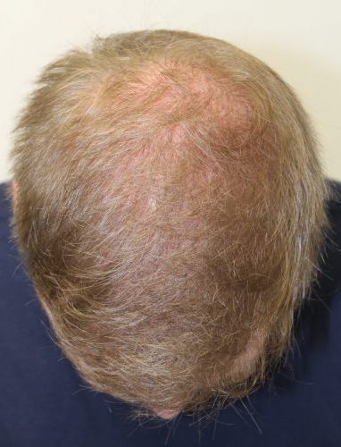 David's hair transplant result - after 2 procedures