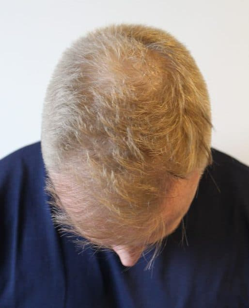 Top of scalp before the surgery
