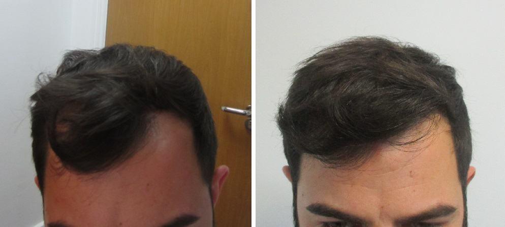 küzeli fotók Kristóf hajvonaláról a kezelés előtt és 1 évvel a műtét után. A képeken jól látszik a változás - dús, természetes hatású hajvonalat értünk el a hajbeültetés segítségével.