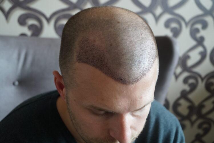 Péter egy héttel a hajbeültetése után