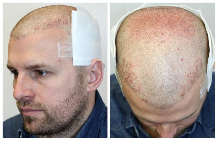 Péter második FUE2 hajbeültető műtétje