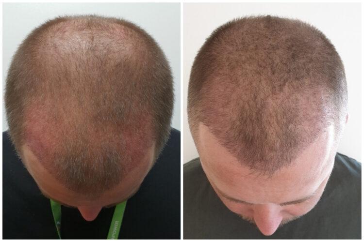 Noel haja 3 héttel és 3 hónappal a hajbeültetés után