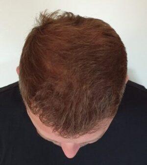 Noel haja 6 hónappal a kezelés után