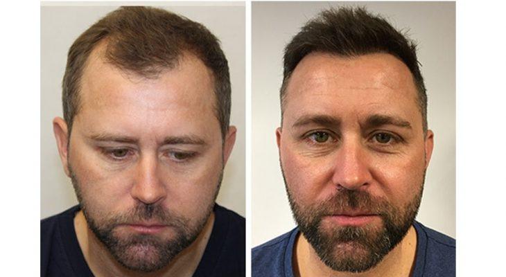 Noel FUE2 hajbeültetése előtte és utána