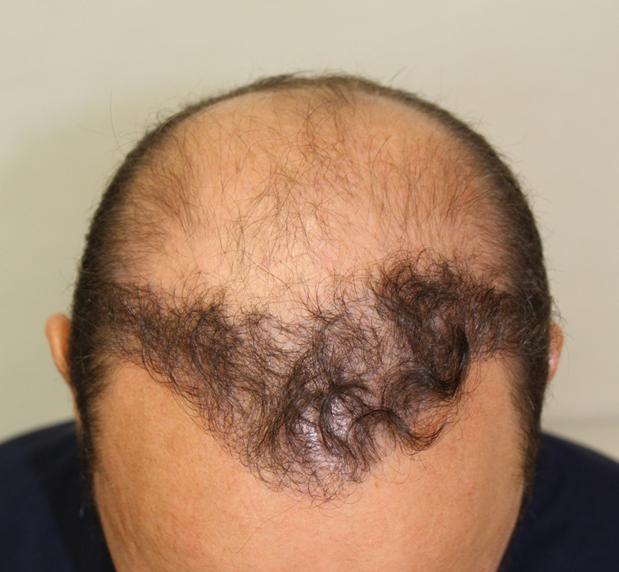 Xavier első hajbeültetés eredménye