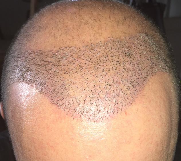 Xavier 1 héttel a FUE2 kezelés után