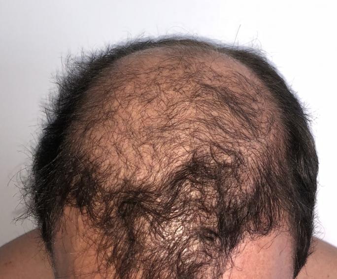 Xavier 3 hónappal a FUE2 hajbeültetés után