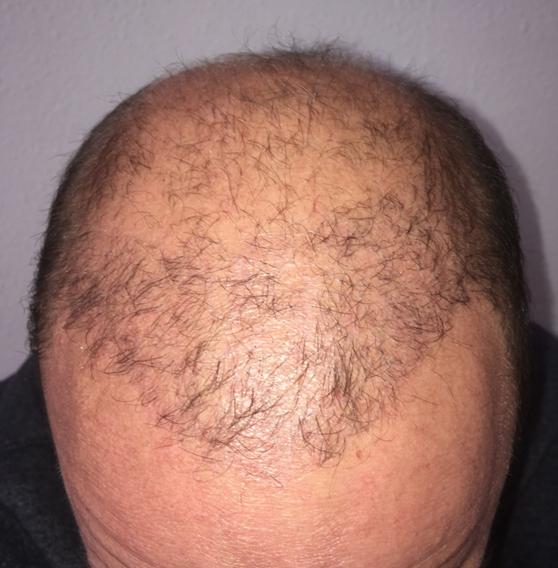 Xavier a hajbeültetése után 3 hónappal
