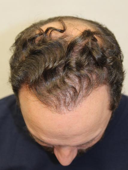 Xavier hajbeültetés eredmény