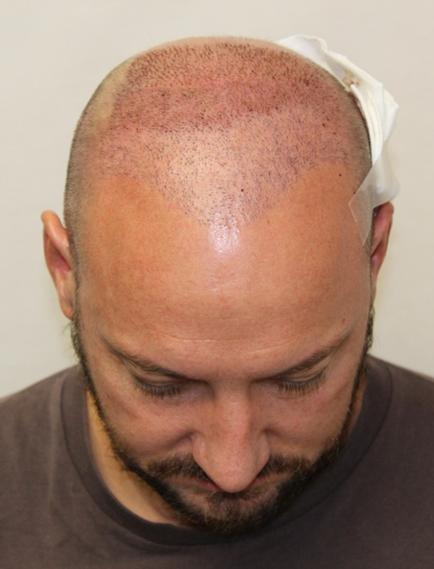 Xavier második FUE2 hajbeültetése