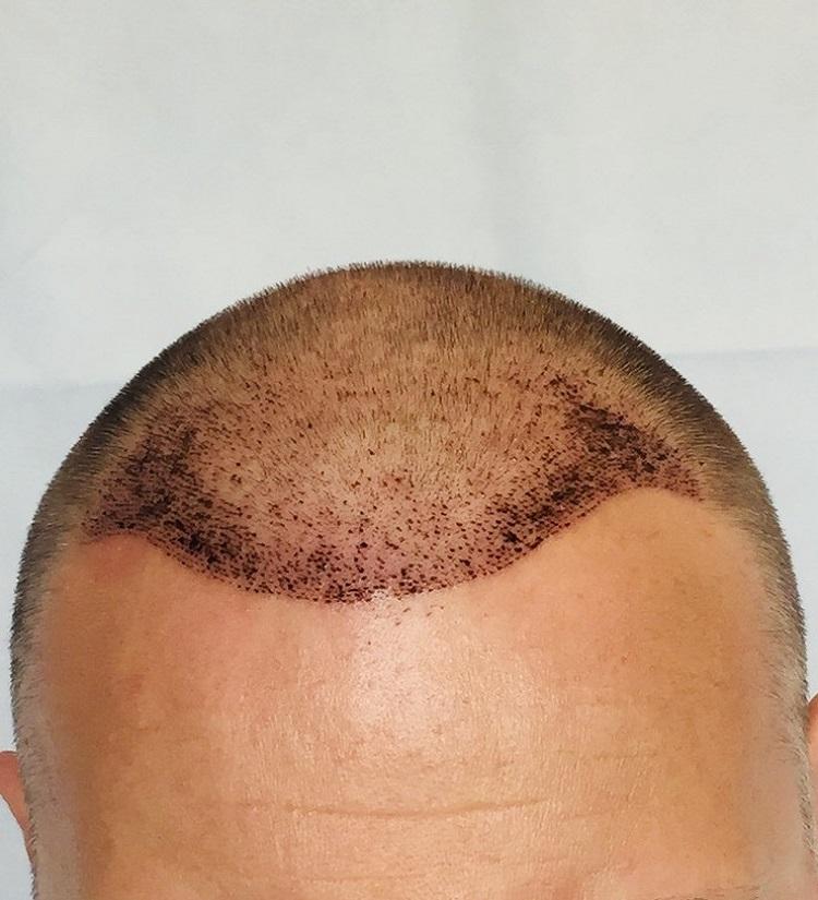1 héttel a hajbeültetés után