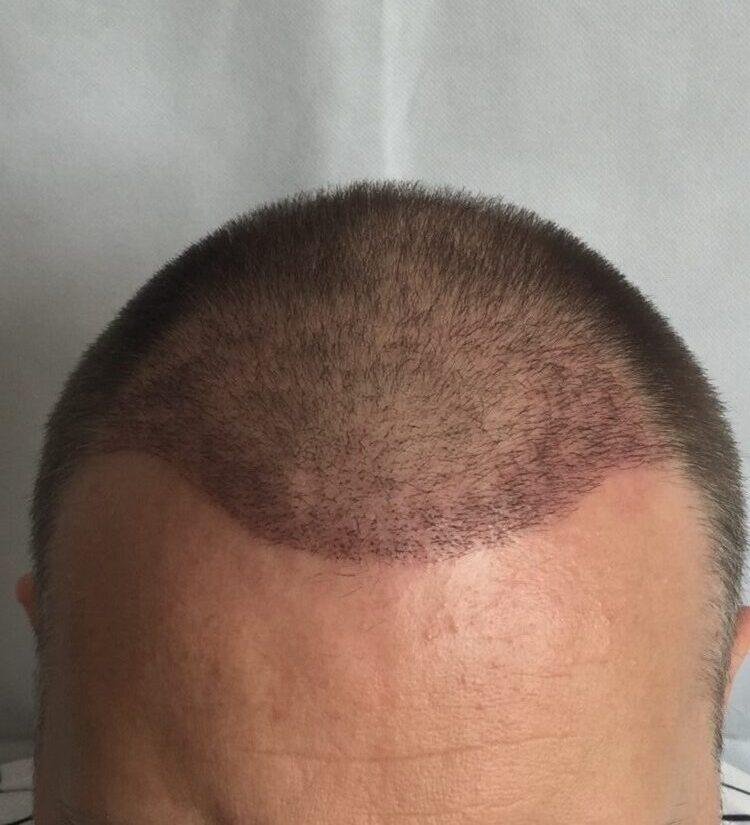 3 héttel a hajbeültető műtét után