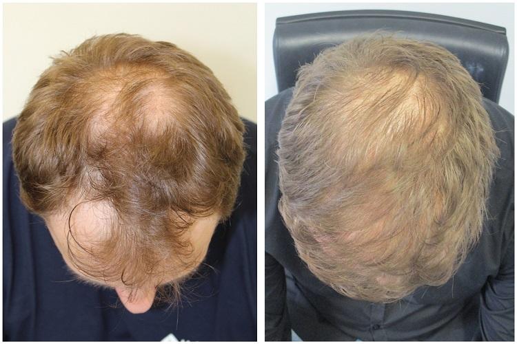hajbeültetés előtt és után paul