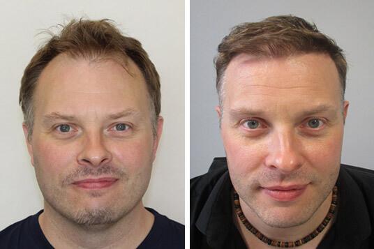 Paul hajbeültetése előtte utána eredmények